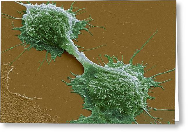 Dividing Cancer Cells, Sem Greeting Card by Steve Gschmeissner