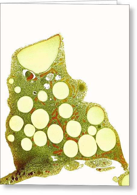 Fat Cells, Tem Greeting Card by
