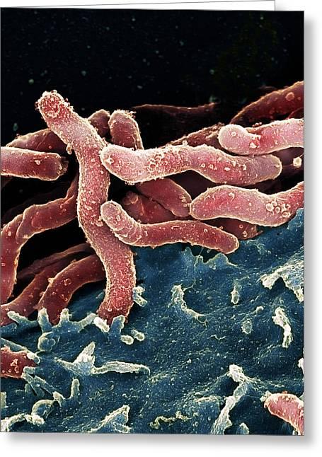 Helicobacter Pylori Bacteria, Sem Greeting Card