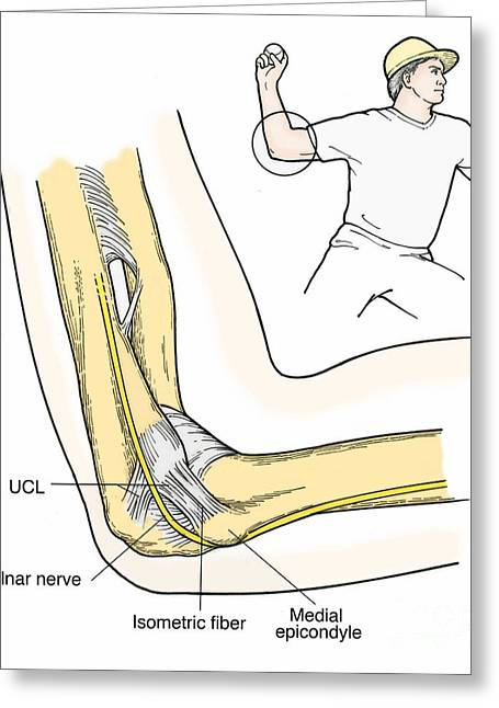 Illustration Of Elbow Ligaments Greeting Card by Science Source