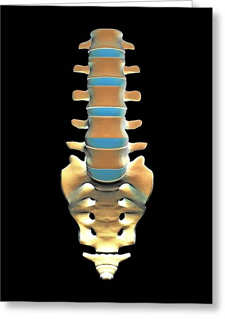 Lumbar Spine And Sacrum, Computer Artwork Greeting Card by Pasieka