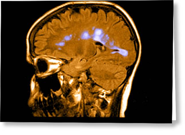 Mri Of Multiple Sclerosis Greeting Card