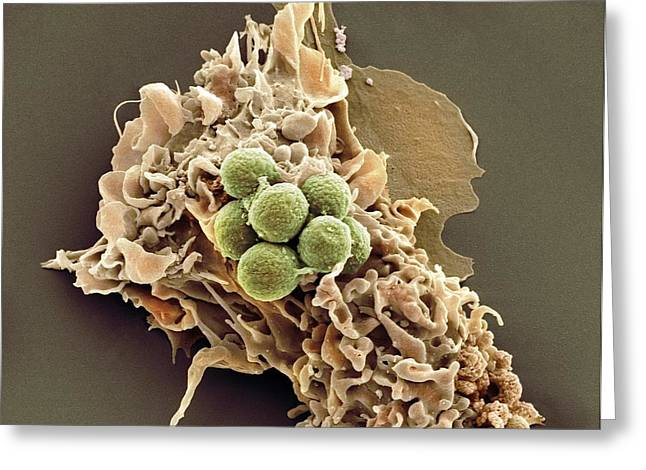 Phagocytosis Of Fungus Spores, Sem Greeting Card