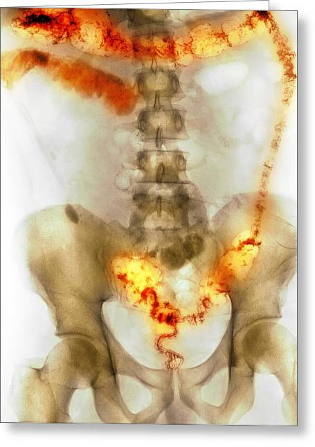 Ulcerative Colitis, X-ray Greeting Card by