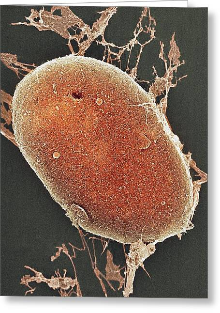 Cell Nucleus, Sem Greeting Card by