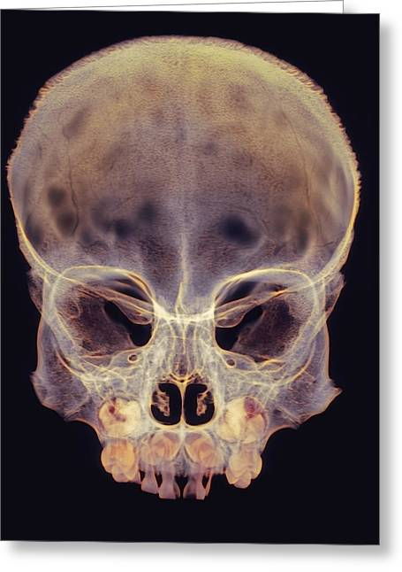 Child's Skull Greeting Card by D. Roberts