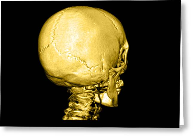 Human Skull Greeting Card by Medical Body Scans