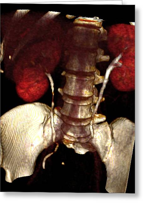 Kidney Damage, Ct Scan Greeting Card