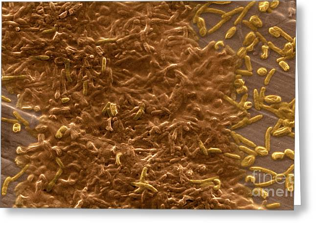 Potable Water Biofilm Greeting Card by Science Source