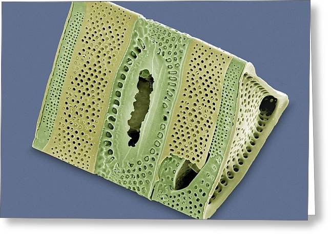 Diatom, Sem Greeting Card by Steve Gschmeissner