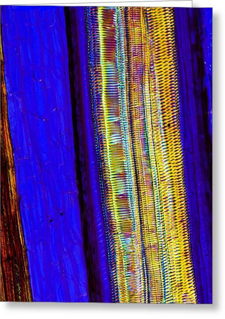 Fern Rhizome, Light Micrograph Greeting Card by Dr Keith Wheeler