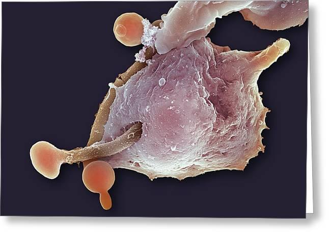 Neutrophil Engulfing Thrush Fungus, Sem Greeting Card