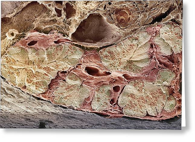 Pancreas Tissue, Sem Greeting Card by Steve Gschmeissner