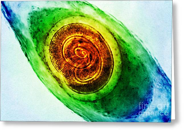 Trichinella In Muscle Lm Greeting Card by Omikron