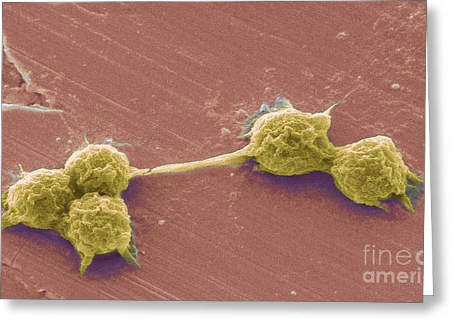 Water Biofilm With H. Vermiformis Cysts Greeting Card by Science Source