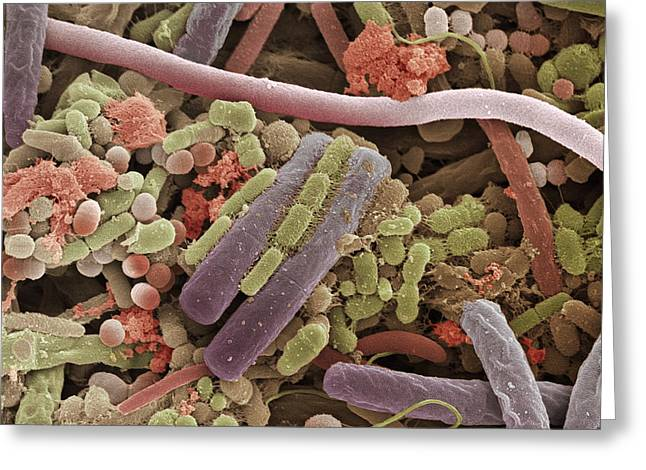Tongue Bacteria, Sem Greeting Card by Steve Gschmeissner