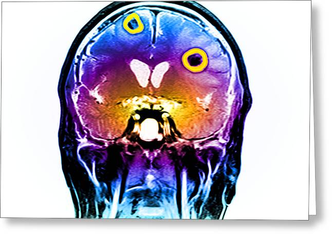 Brain Tumors Greeting Card by Medical Body Scans