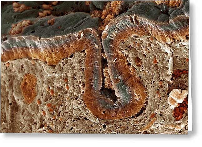 Colon Cancer, Sem Greeting Card by Steve Gschmeissner