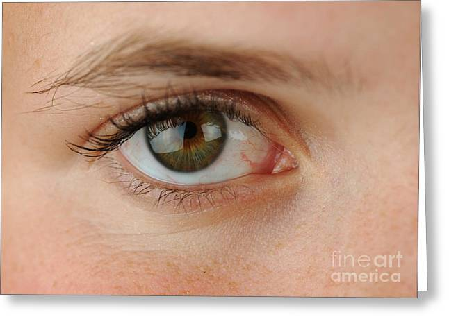 Womans Eye Greeting Card by Photo Researchers, Inc.
