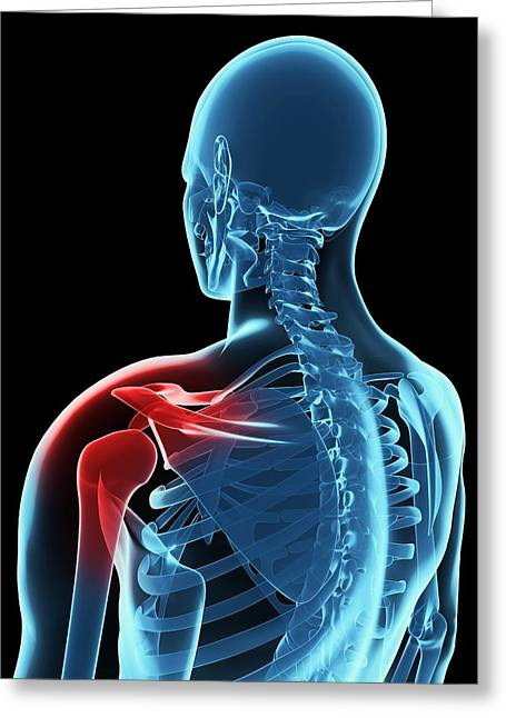 Shoulder Pain, Conceptual Artwork Greeting Card by Sciepro