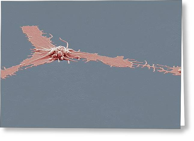 Activated Platelet, Sem Greeting Card by Steve Gschmeissner