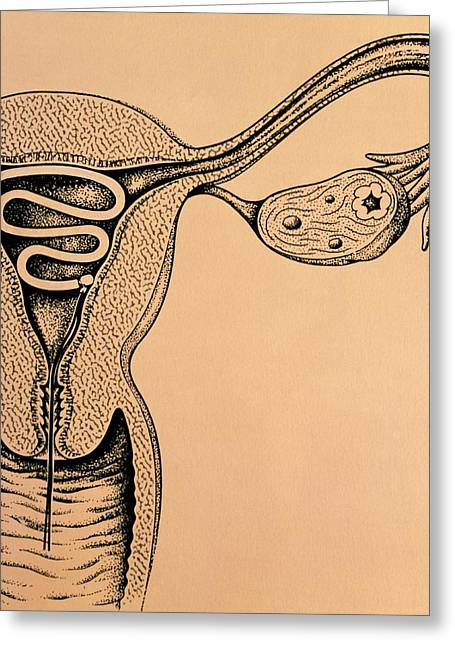 Artwork Of An Intrauterine Device In The Uterus Greeting Card by John Bavosi