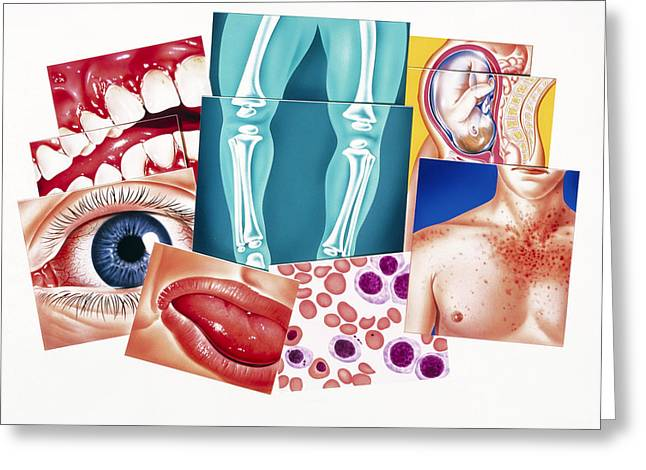 Artwork Of Disorders Due To Vitamin Deficiencies Greeting Card