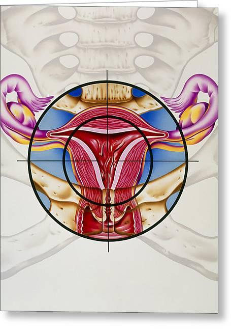 Artwork Of The Uterus During Menstruation Greeting Card by John Bavosi