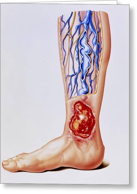 Artwork Of Varicose Veins & Ulcer On Leg Greeting Card by John Bavosi
