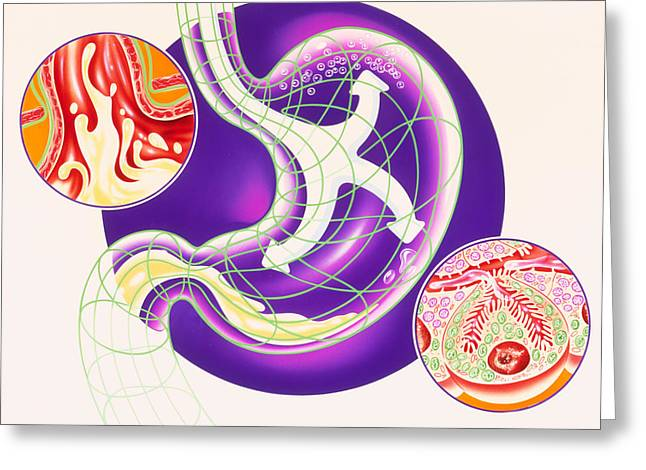 Artwork Showing Dyspepsia & Acid Reflux Treatment Greeting Card