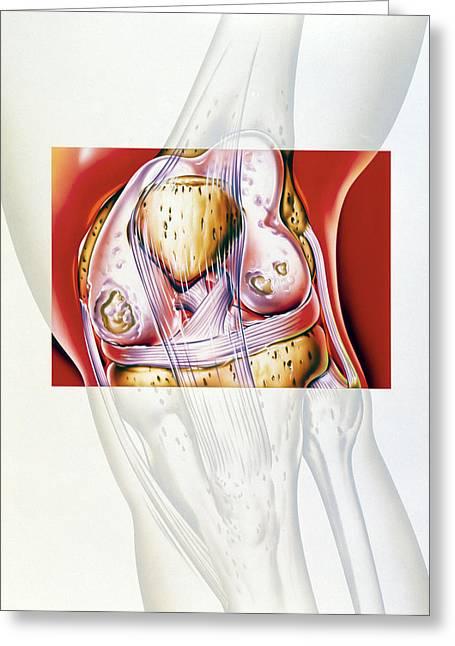 Artwork Showing Rheumatoid Arthritis Of The Knee Greeting Card by John Bavosi