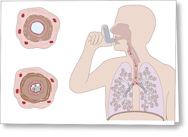 Asthma Pathology And Treatment, Diagram Greeting Card by Peter Gardiner