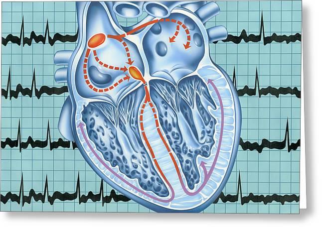 Atrial Fibrillation Greeting Card by John Bavosi