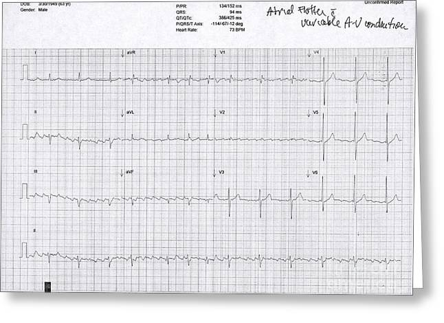 Atrial Flutter, Ecg Greeting Card by Science Source