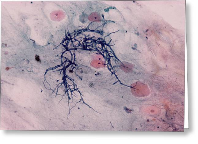 Candida Fungus, Light Micrograph Greeting Card