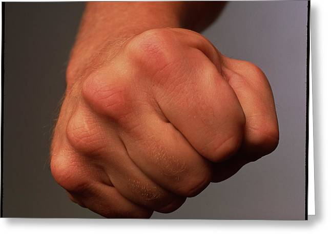Clenched Fist Greeting Card