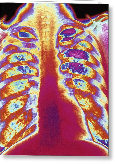 Coloured Chest X-ray Of A Healthy Woman Greeting Card by Mehau Kulyk
