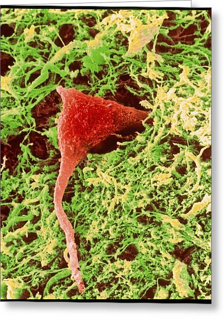 Coloured Sem Of A Nerve Cell In Brain Tissue Greeting Card by Steve Gschmeissner
