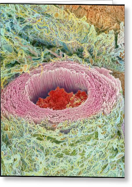 Coloured Sem Of Section Through A Human Arteriole Greeting Card by Steve Gschmeissner
