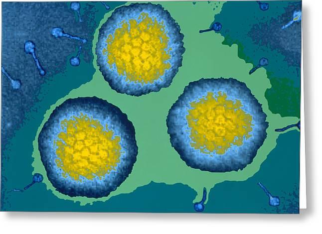 Coloured Tem Of Three Adenoviruses Greeting Card by Dr Linda Stannard, Uct