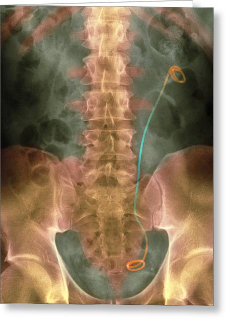 Coloured X-ray Of A Stent Inserted In The Ureter Greeting Card