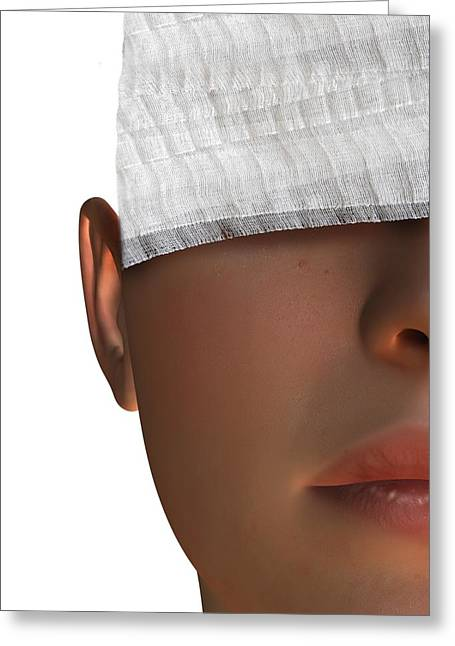 Cosmetic Surgery, Conceptual Artwork Greeting Card by Victor Habbick Visions