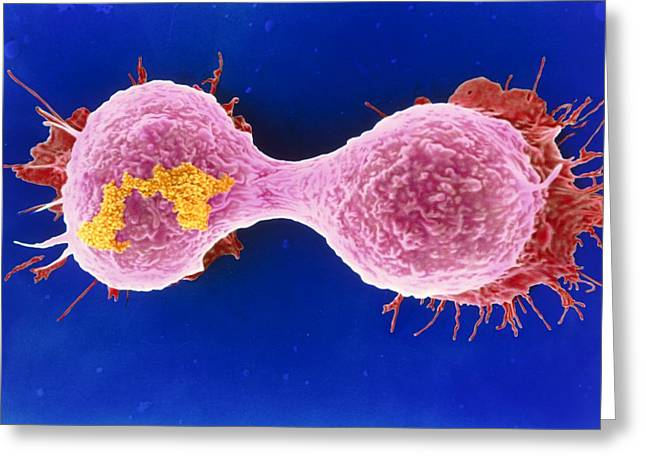 Dividing Breast Cancer Cell Greeting Card by Steve Gschmeissner