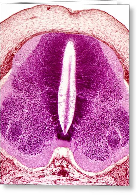 Embryo Spinal Cord, Light Micrograph Greeting Card by Steve Gschmeissner