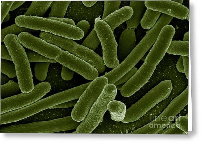 Escherichia Coli Bacteria, Sem Greeting Card by Science Source