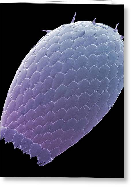 Euglypha Amoeba Shell, Sem Greeting Card by Steve Gschmeissner