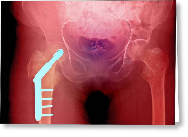 Fixed Hip And Fracture (image 1 Of 2) Greeting Card by Du Cane Medical Imaging Ltd