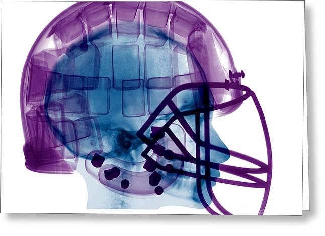 Football Helmet X-ray Greeting Card by Ted Kinsman