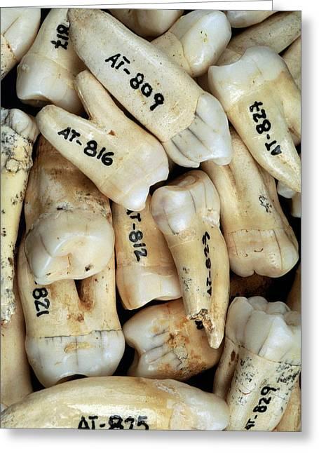 Fossilised Teeth, Sima De Los Huesos Greeting Card