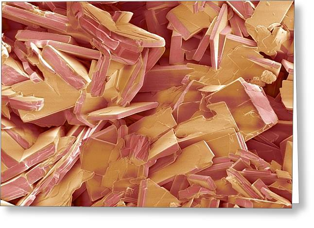 Gallstone Crystals, Sem Greeting Card by Steve Gschmeissner